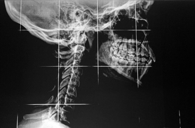 Rdzeń kręgowy to najbardziej newralgiczny element przy przeszczepie głowy /123RF/PICSEL
