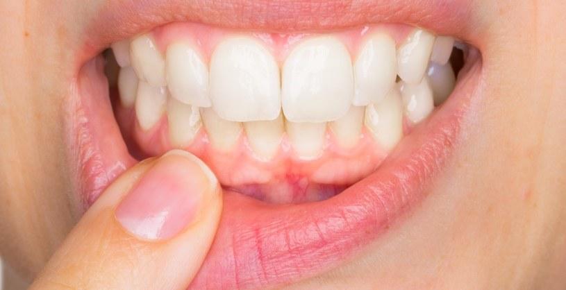 Reaguj szybko, gdy zęby krwawią /123RF/PICSEL
