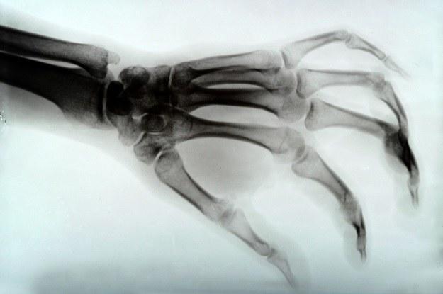 Regeneracja utraconych kończyn zaczyna się od tkanek miękkich /123RF/PICSEL