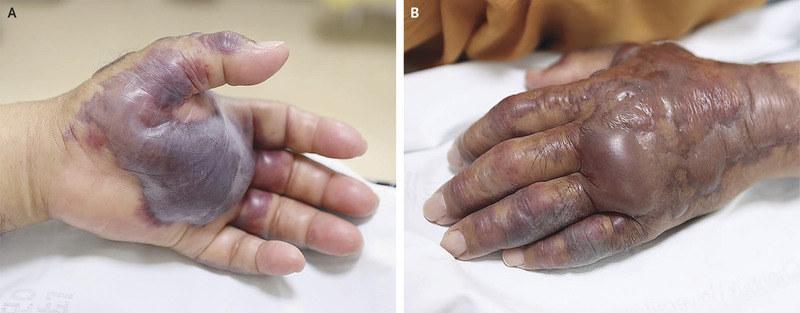 Ręki Koreańczyka nie udało się uratować /New England Journal of Medicine /materiały prasowe