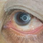 Retinopatia cukrzycowa: Przyczyny, objawy i leczenie