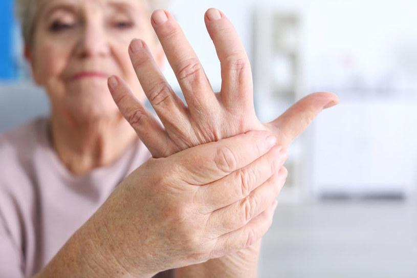 Reumatoidalne zapalenie stawów /©123RF/PICSEL