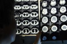 RMF: 23-latek, podający się za radiologa, własnoręcznie podrabiał dokumenty