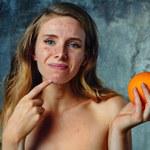 Rola diety w leczeniu trądziku