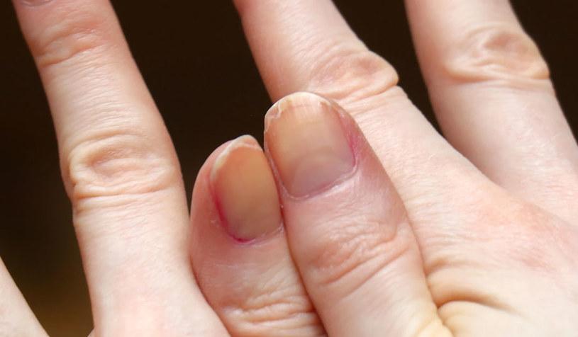 Rozdwajające się paznokcie /©123RF/PICSEL