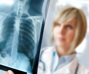 Rozedma płuc - nadmiar powietrza w pęcherzykach płucnych