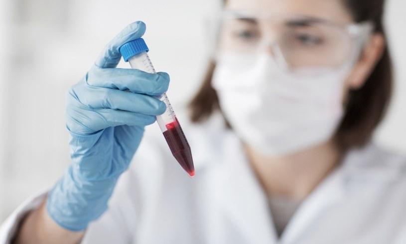 Rozróżniamy cztery grupy krwi /©123RF/PICSEL