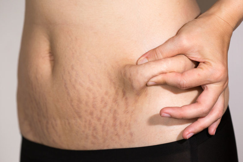 Rozstępy na brzuchu /©123RF/PICSEL