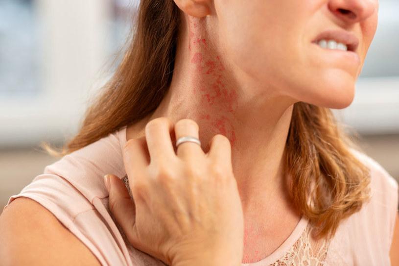 Rumień a wysypka i alergia /©123RF/PICSEL