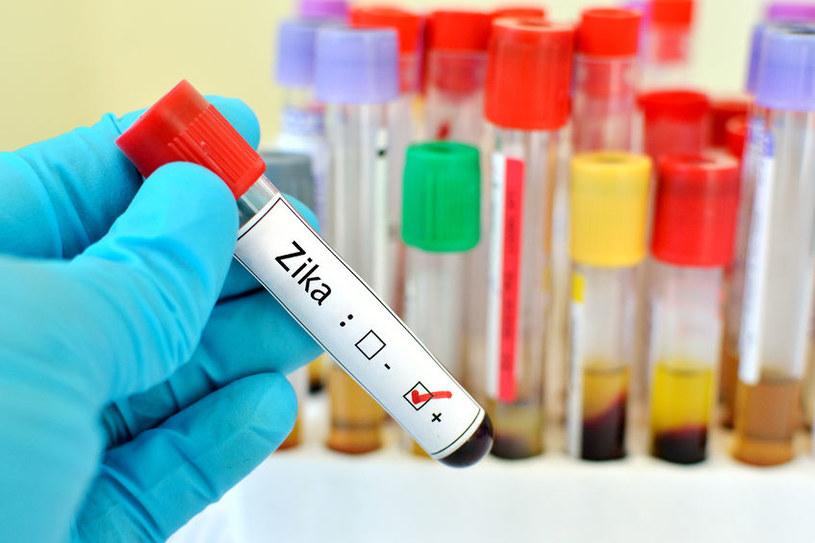 Ruszają testy kliniczne GLS-5700 /123RF/PICSEL