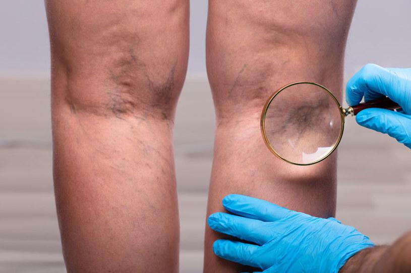 Rutyna zapobiega żylakom /©123RF/PICSEL
