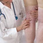 Ryzyko zakrzepów w razie COVID-19 i po szczepieniu AstraZeneką