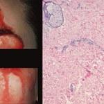 Rzadki przypadek medyczny - kobieta pociła się krwią