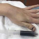 Rzadki przypadek medyczny. Krew kobiety zmieniła kolor na granatowy