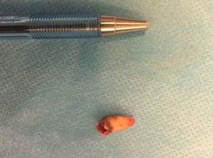 Rzadki przypadek medyczny - ząb w nosie