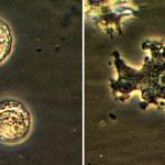 Rzadki przypadek zarażenia amebą z wody z kranu