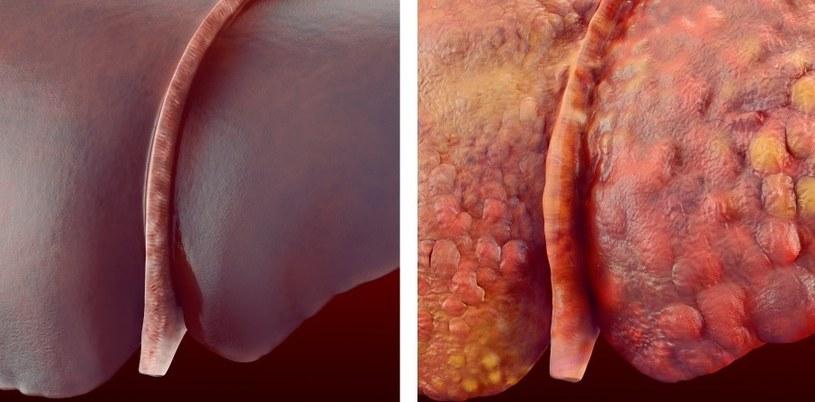 Rzepik regeneruje wątrobę /©123RF/PICSEL