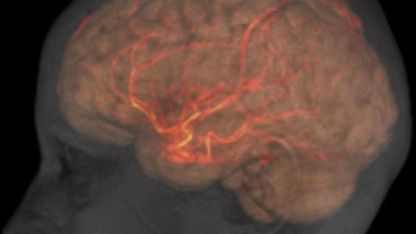 Rzęski odgrywają ważną rolę w przepływie płynu mózgowo-rdzeniowego /materiały prasowe