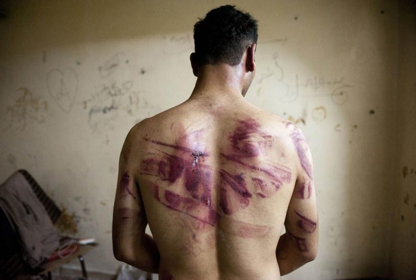 Są dowody na stosowanie tortur w rządowych więzieniach /AFP