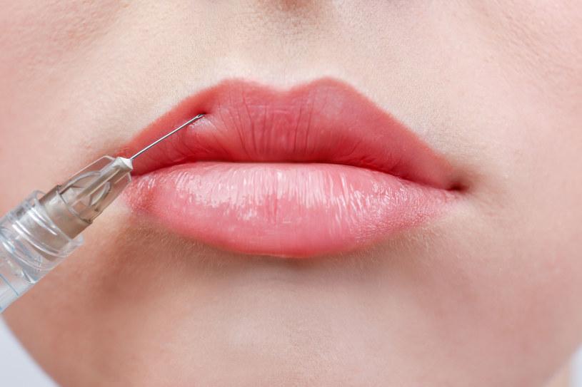 Są mniej inwazyjne metody powiększania ust niż wypełnianie ich u chirurga /123RF/PICSEL