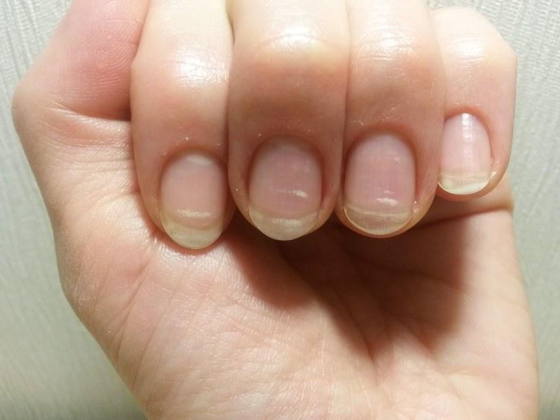 Są sposoby, by ukryć zniszczone i zaniedbane paznokcie /123RF/PICSEL