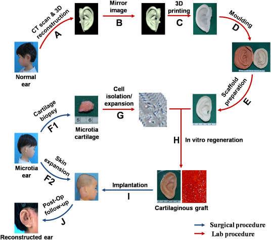 Schemat procedury /fot. EBioMedicine /materiały prasowe