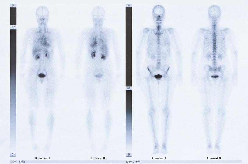 Scyntygrafii można poddać układ kostny /123RF/PICSEL