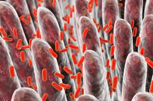 SIBO - nadmiar bakterii w jelicie cienkim