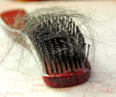 Siedem naturalnych sposobów, aby zatrzymać wypadanie włosów