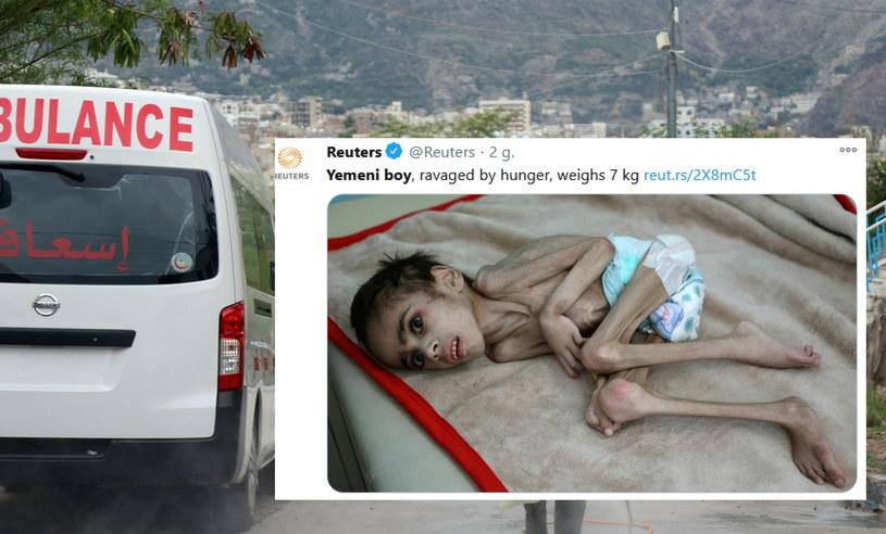 Siedmioletni Faid Samim ledwo przeżył podróż do szpitala /AFP/Reuters /