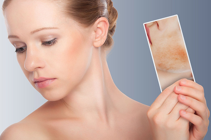Silnie uczulające potrafią być również kremy zawierające skoncentrowane substancje nawilżające, tzw. serum oraz różne innowacyjne składniki, które zamiast upiększać, powodują alergię /123RF/PICSEL