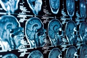 Skan twojego mózgu ujawni o kim myślisz