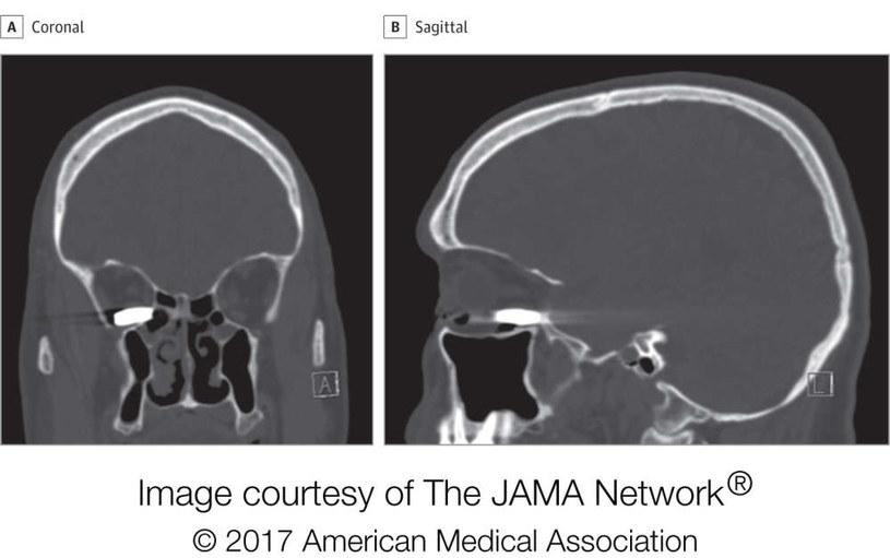 Skany czaszki pacjenta /materiały prasowe