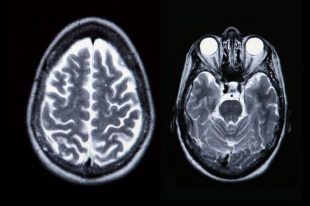 Skany mózgu mogą wskazać dysfunkcje połączeń nerwowych /123RF/PICSEL