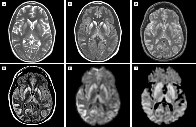 Skany przedstawiające mózgi osób chorych na CJD /materiały prasowe