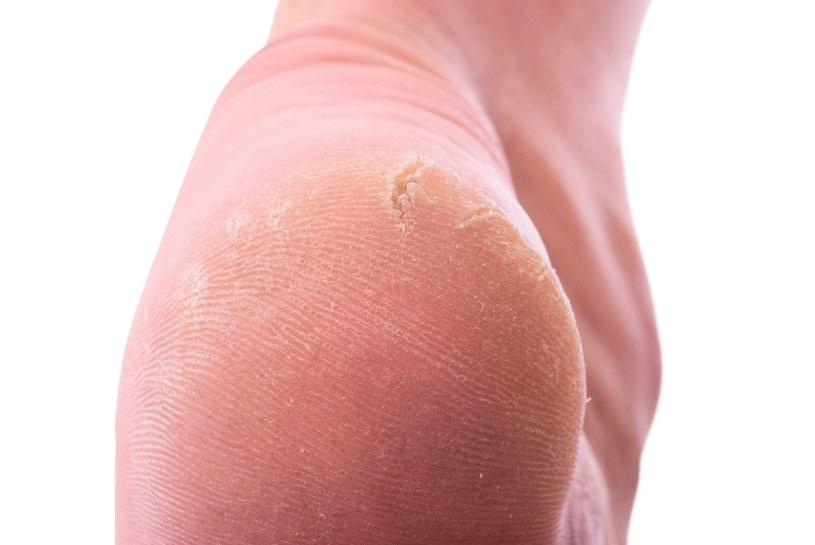 Skóra na stopach często pęka /©123RF/PICSEL