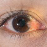 Skrzydlik oka: Przyczyny, objawy i leczenie