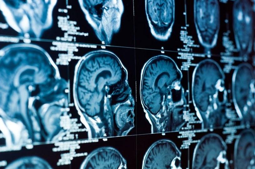 Skutki niektórych urazów mózgu nie są widoczne od razu /123RF/PICSEL