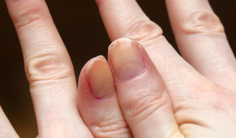 Słabe i łamliwe paznokcie to jeden z objawów niedoboru witaminy C /123RF/PICSEL