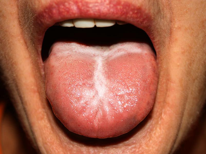 Słodki posmak może być objawem grzybicy jamy ustnej /123RF/PICSEL
