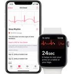 Smartwatch pomoże wykryć koronawirusa