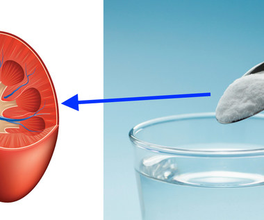 Soda oczyszczona na kamienie nerkowe - jak stosować?