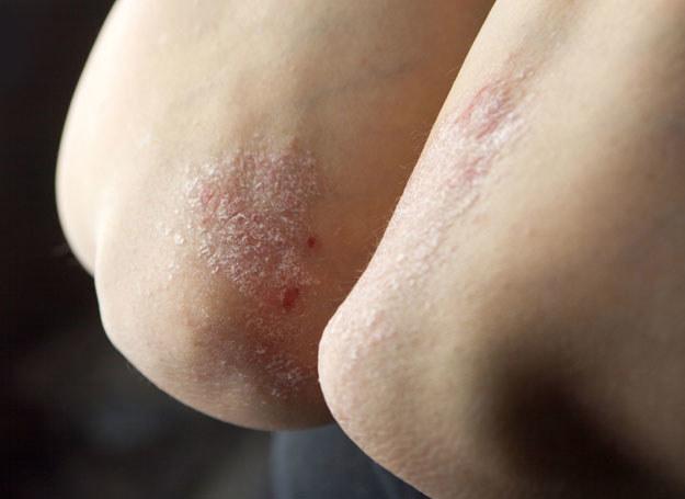 Sok z cytryny rozjaśni ciemny naskórek na łokciach /123RF/PICSEL