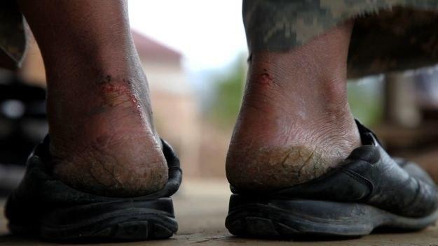 Spękane stopy Kim Ki-Duka /materiały dystrybutora