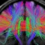 Spektakularne odkrycie! Koniec ze starzeniem mózgu?