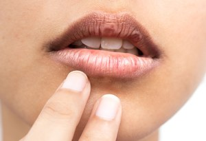 Spierzchnięte usta latem - skąd się bierze ten problem?
