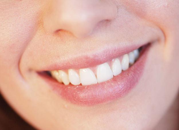 Spierzchnięte usta smaruj tłustym bezbarwnym sztyftem /123RF/PICSEL