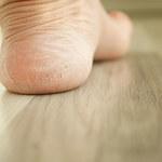 Sposób na popękane pięty: Moczenie nóg w mleku i sodzie