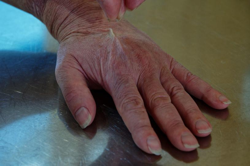 Sposobem na sprawdzenie, czy skóra jest odwodniona, jest delikatne uszczypnięcie skóry na dłoni lub policzku /123RF/PICSEL