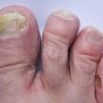 Sposoby na leczenie i zapobieganie grzybicy stóp